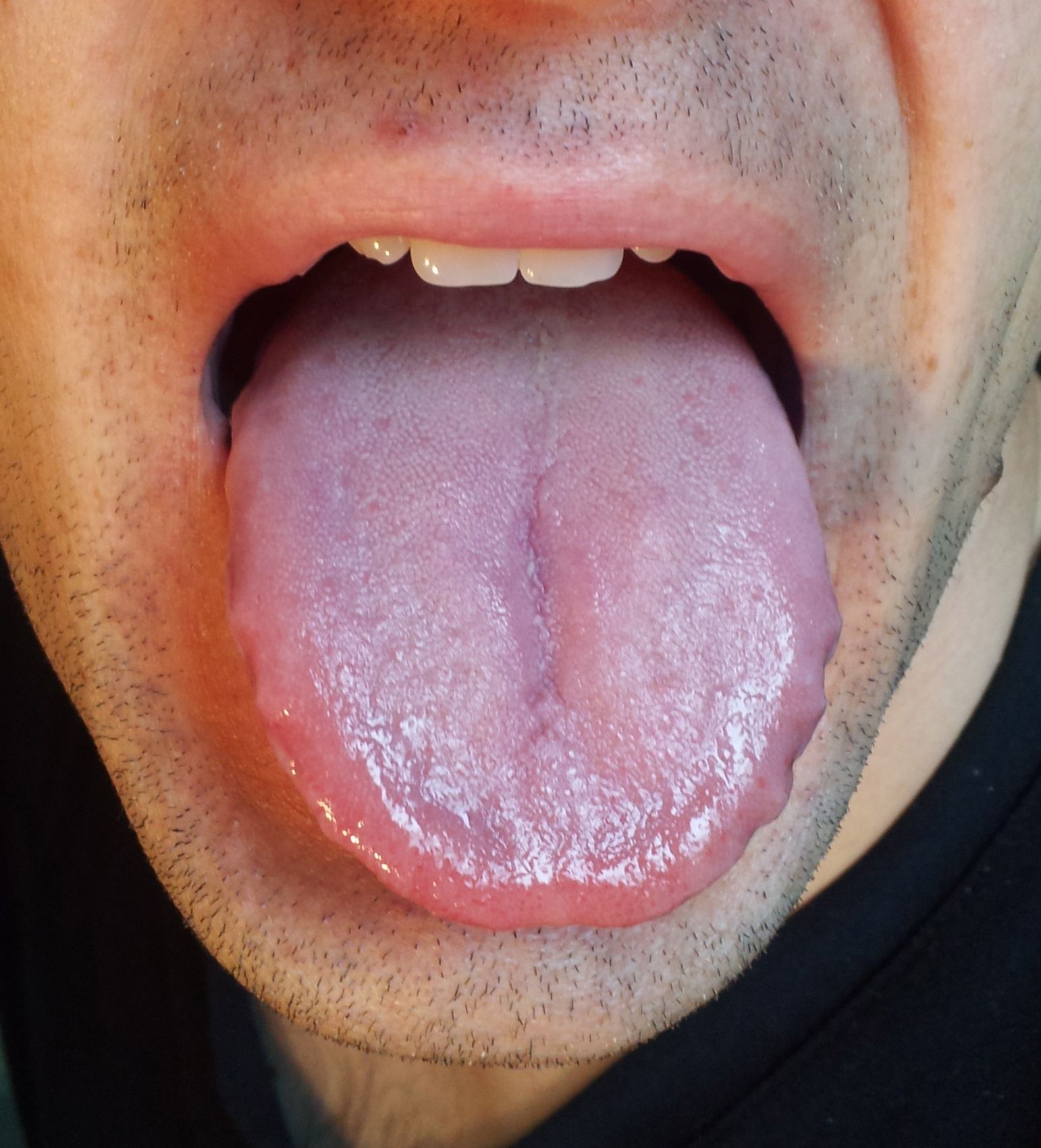 Tongue #4 | Integrating Health