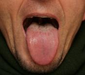Tongue #2