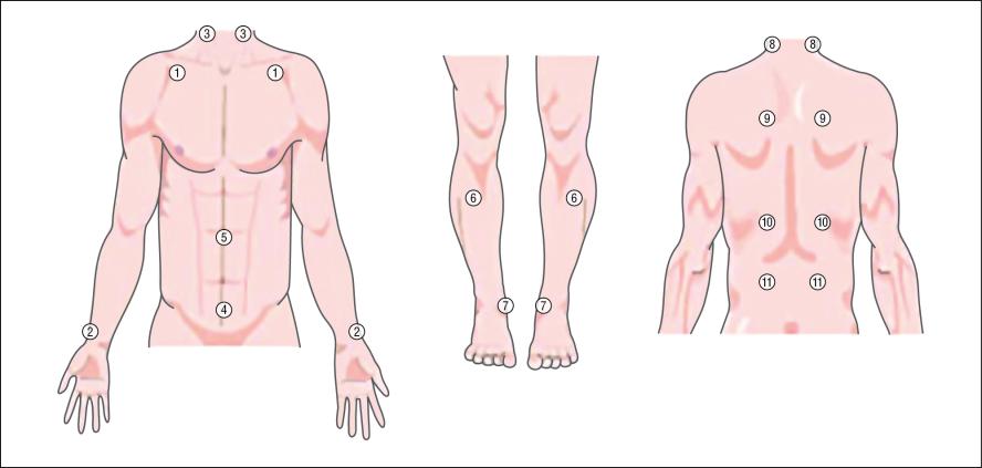 COPDpoints